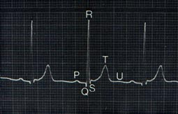 elettrocardiogramma.jpg